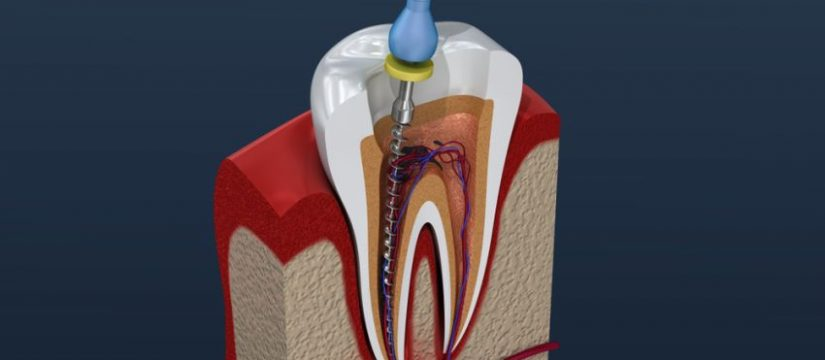 root canal yarraville